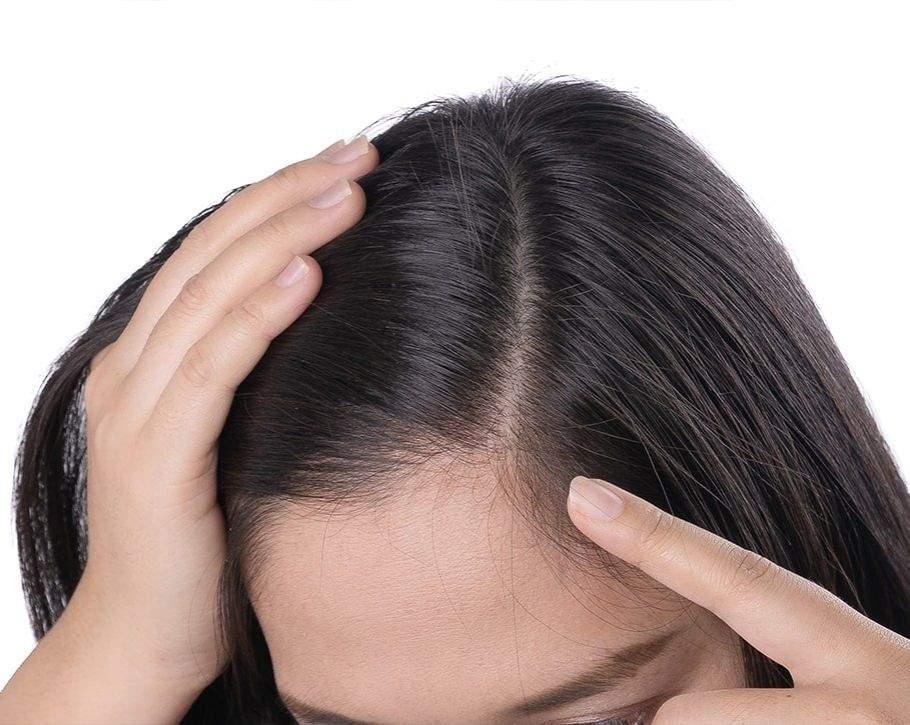 نازک شدن مو | آنجکس