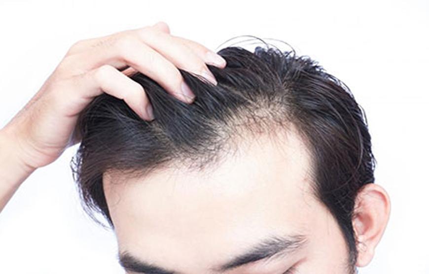 عادات روزمره ای که در نازک شدن مو نقش دارند