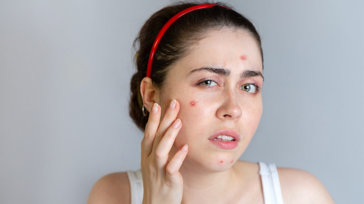 جوش صورت - محصولات ضد دمودکس آنجکس