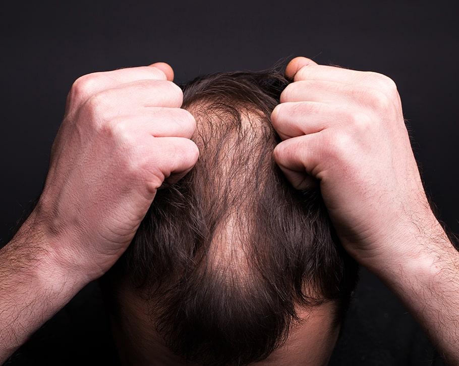 نازک شدن مو در اثر دمودکس | آنجکس