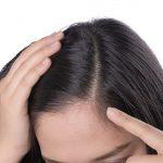 نازک شدن مو در اثر دمودکس