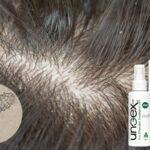 حلقه گمشده ارتباط بین ریزش مو و شوره سر: دمودکس مایت